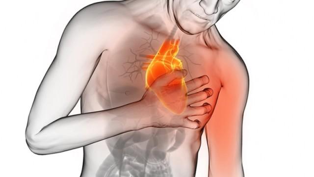 Infarto del miocardio Milano